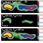 MRI images